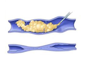 Flebo-esclerosis de varices