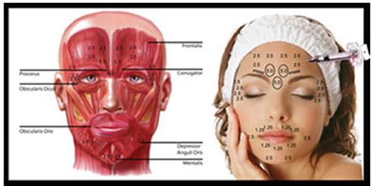 Lifting facial con BTX